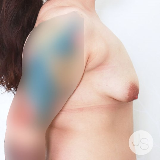 Tuberous Breast Reconstruction Before