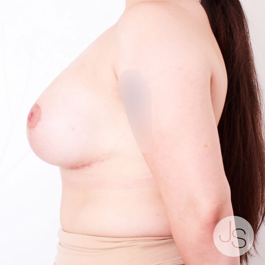 Tuberous Breast Reconstruction After