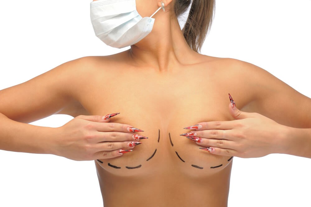 Breast Reduction Using Lipo